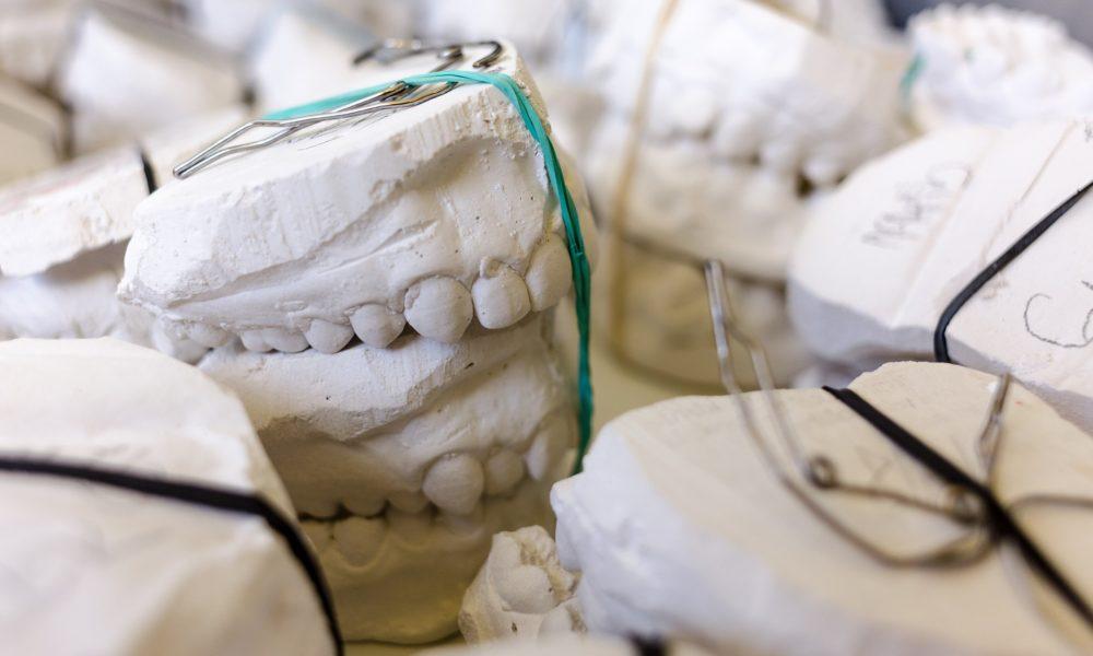 Zła sposób żywienia się to większe braki w jamie ustnej oraz także ich utratę